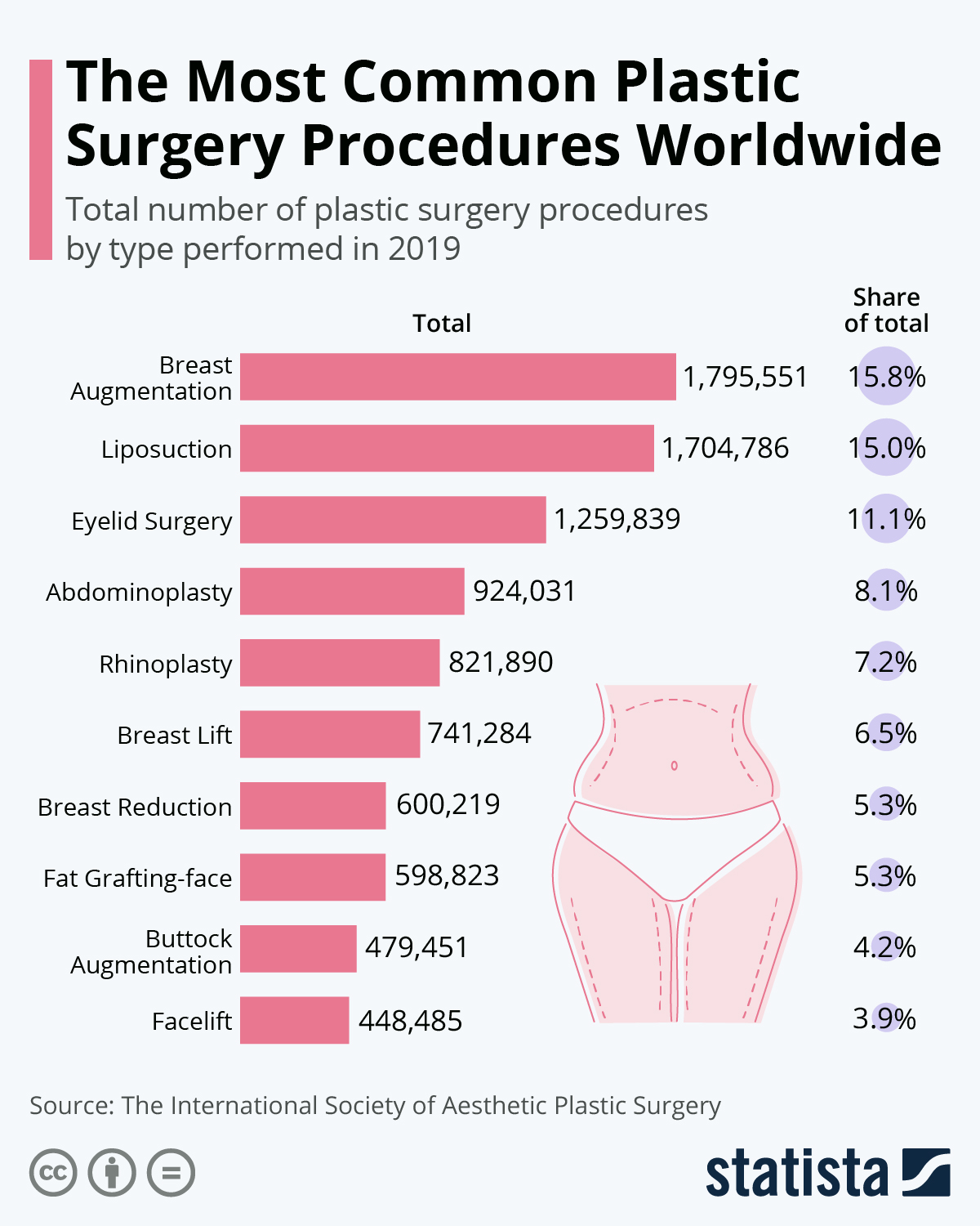 Infographic: The Most Common Plastic Surgery Procedures Worldwide   Statista