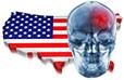 Cerebrovascular disease in the U.S. statistics